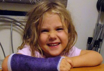 girl with broken arm in cast